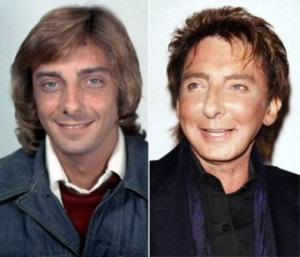 20140418_67799_barry-manilow-addicted-to-plastic-surgery