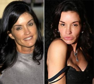 20140418_67799_janice-dickinson-plastic-surgery-by-50