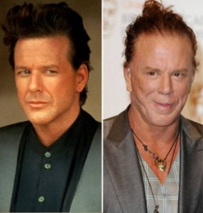 20140418_67799_mickey-rourke-plastic-surgery-before-after