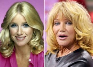 20140418_67799_suzanne-somers-tv-stars-plastic-surgery